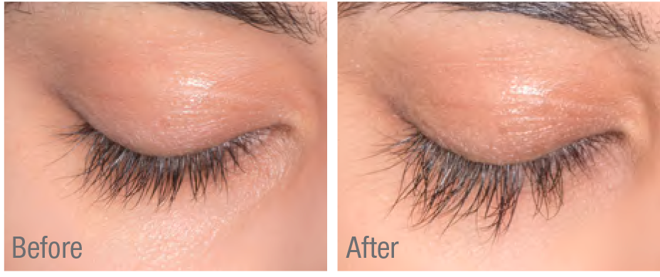 Flash lash before and after